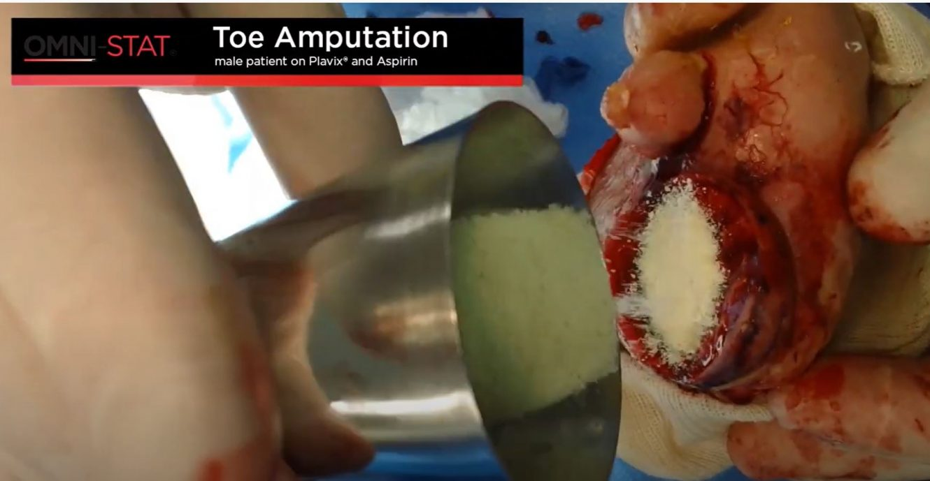 Toe Amputation Bleeding Control in Surgery Using a Topical Hemostat