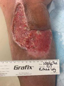 Hematoma debridement 9 days post surgery