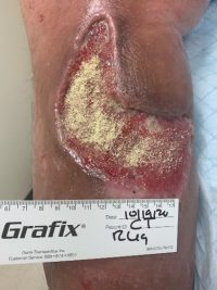 Hematoma after further debridement showing hemostat granules