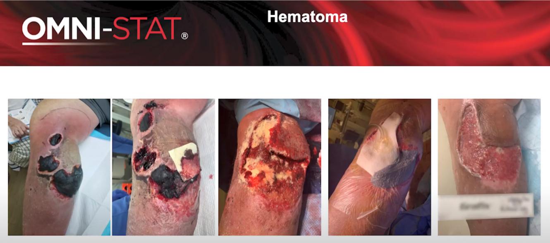 Hematoma Debridement : Case Study Update – Fully Healed Wound